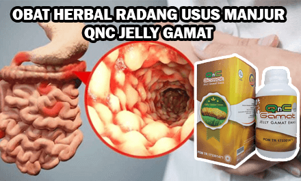 obat herbal radang usus qnc jelly gamat